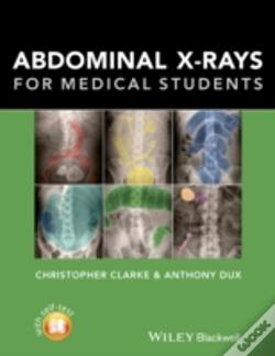 Wook.pt - Abdominal X-Rays For Medical Students