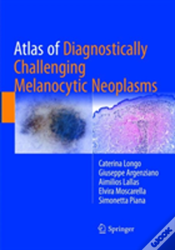 Wook.pt - Atlas Of Diagnostically Challenging Melanocytic Neoplasms