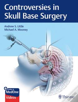 Wook.pt - Controversies In Skull Base Surgery