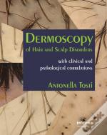 Dermoscopy Of Hair And Scalp Disorders
