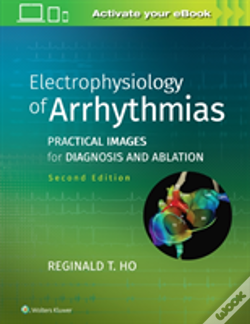 Wook.pt - Electrophysiology Of Arrhythmias 2e