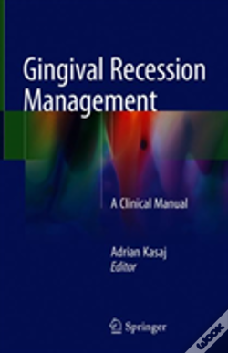 Wook.pt - Gingival Recession Management