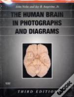 Human Brain In Photographs And Diagrams