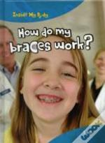 Inside My Body: How Do Braces My Work?