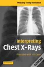 Interpreting Chest X-Rays