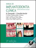 Manual de Implantodontia Clínica