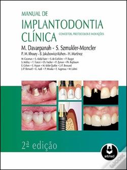 Wook.pt - Manual de Implantodontia Clínica