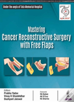 Wook.pt - Mastering Cancer Reconstructive Surgery With Free Flaps