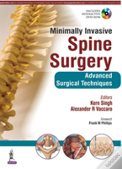 Wook.pt - Minimally Invasive Spine Surgery: Techniques, Evidence, & Controversies