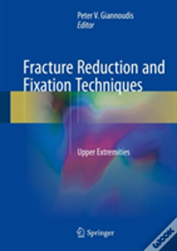 Wook.pt - Osteosynthesis Of Fractures