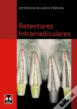 Retentores Intrarradiculares
