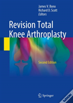 Wook.pt - Revision Total Knee Arthroplasty