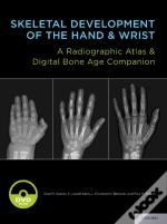 Skeletal Development Of The Hand And Wrist: A Radiographic Atlas And Digital Bone Age Companion