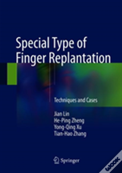 Wook.pt - Special Type Of Finger Replantation