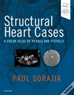 Wook.pt - Structural Heart Cases