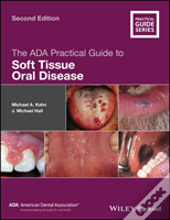 The Ada Practical Guide To Soft Tissue Oral Disease