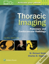 Thoracic Imaging 3e