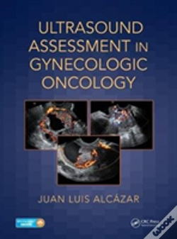 Wook.pt - Ultrasound Assessment In Gynecologic Oncology